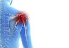 Throwing Injuries of the Shoulder